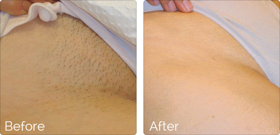 Laser Hair Removal Madsen Medical Spa